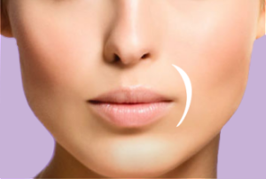 Juvederm Austin | Reduce Signs of Aging | Simple Radiance Austin
