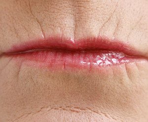 Wrinkles Austin | Smoker Line Treatment | Simple Radiance Medspa