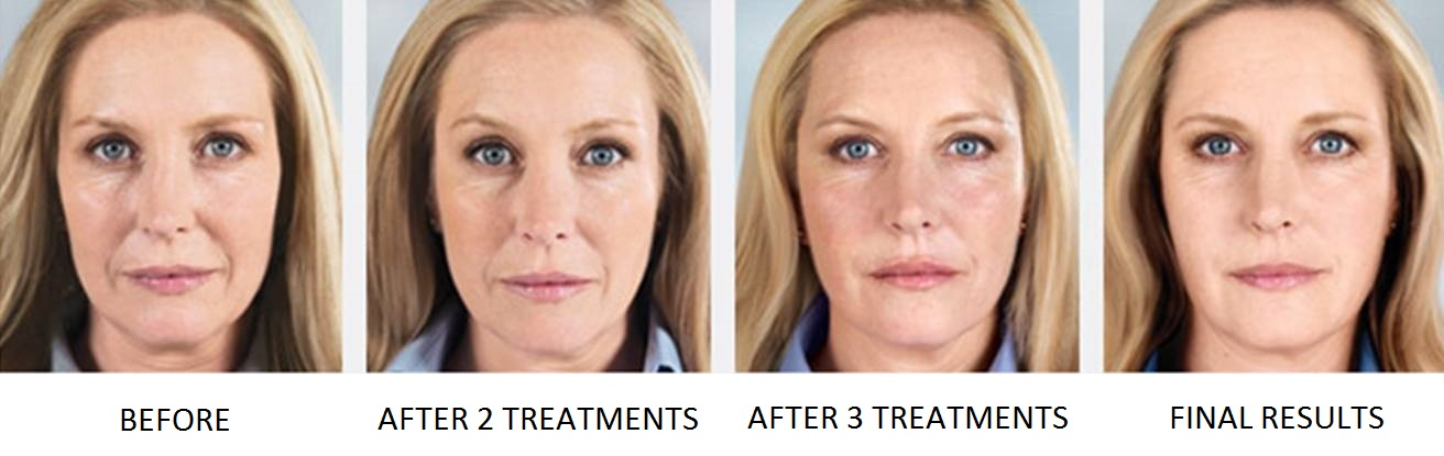 Sculptra Aesthetic Filler Before & After | Facial Volume Loss| Simple Radiance Medspa Austin