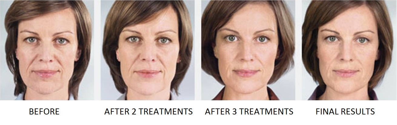 Sculptra Aesthetic Filler Before & After | Facial Volume Loss | Simple Radiance Medspa Austin