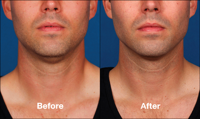 Kybella| Double Chin Treatment Austin| Simple Radiance Medspa Austin