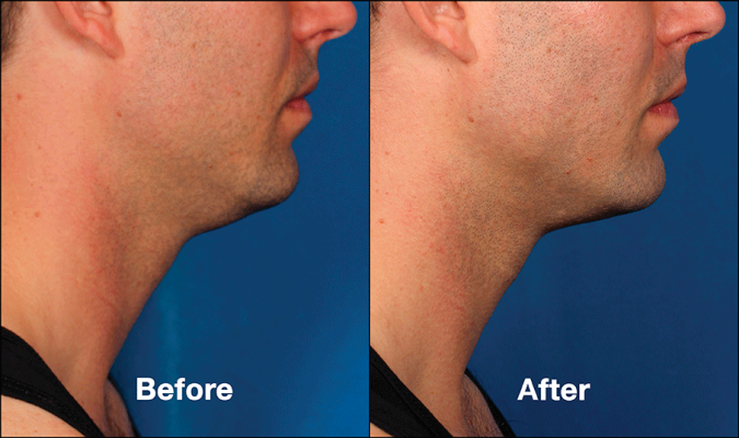 Kybella | Double Chin Treatment Austin | Simple Radiance Medspa Austin