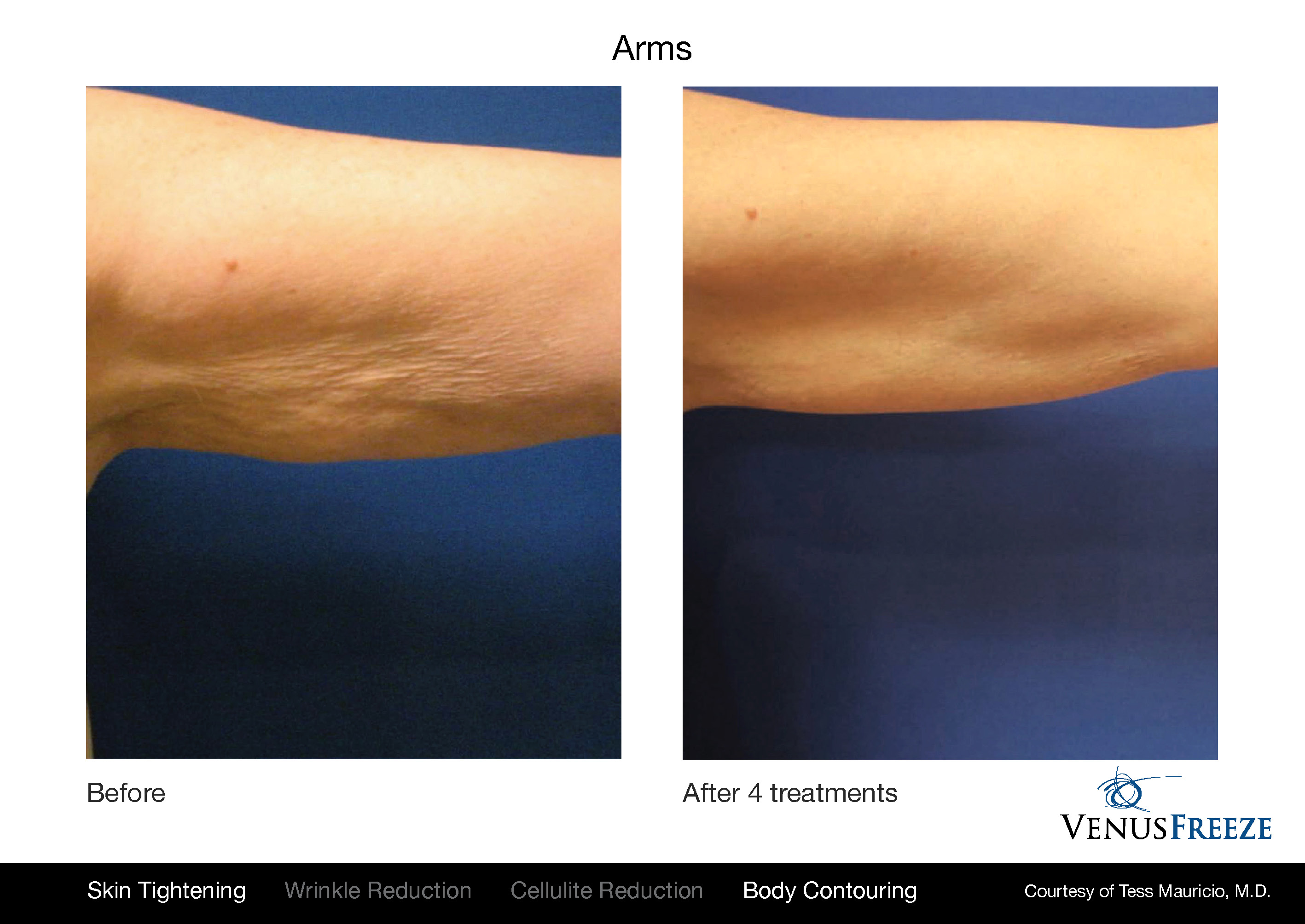 Body Contouring Austin | Venus Freeze Arm Before & After | Batwings | Skin Tightening