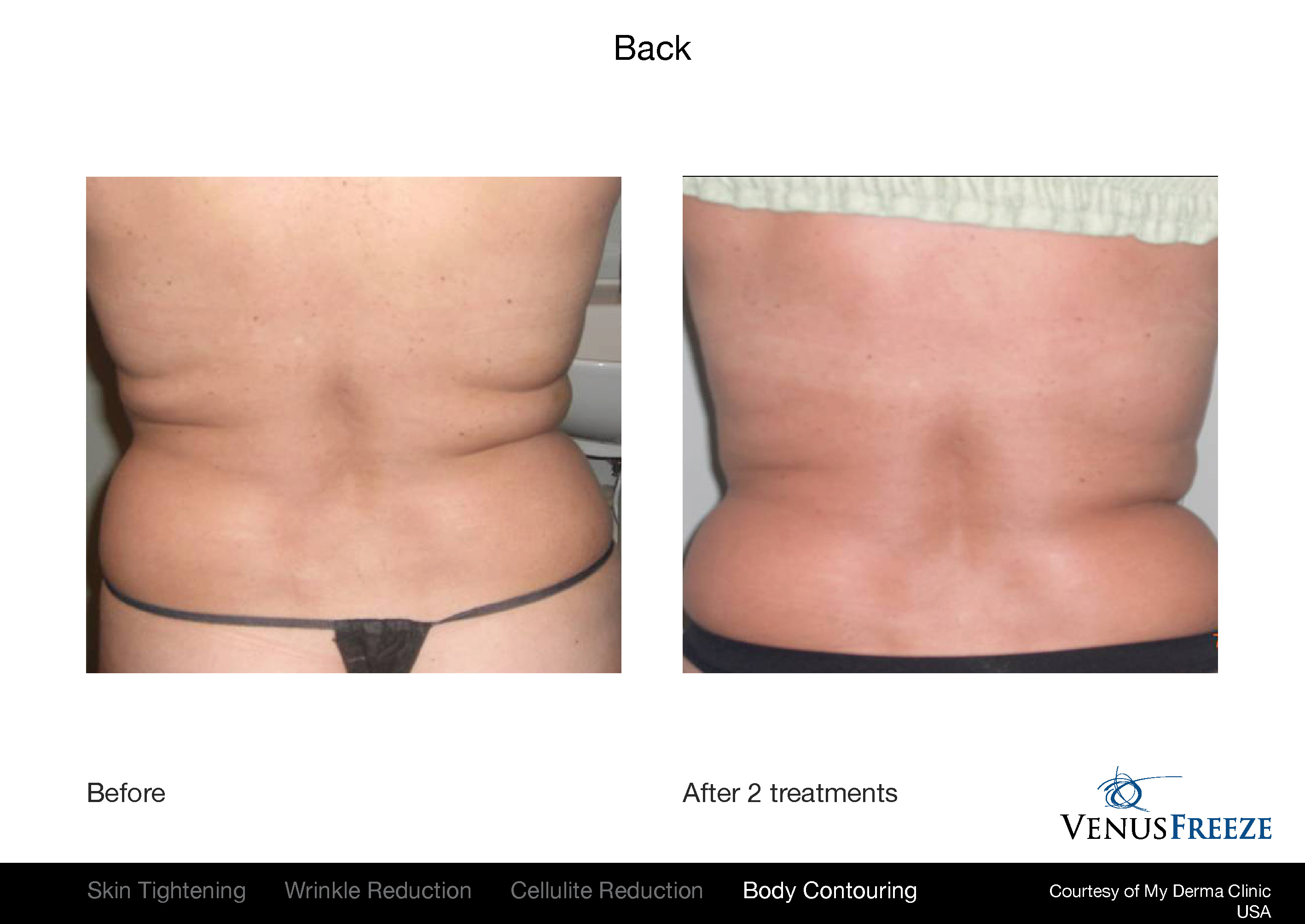 Body Contouring Austin |Venus Freeze Stomach Before & After