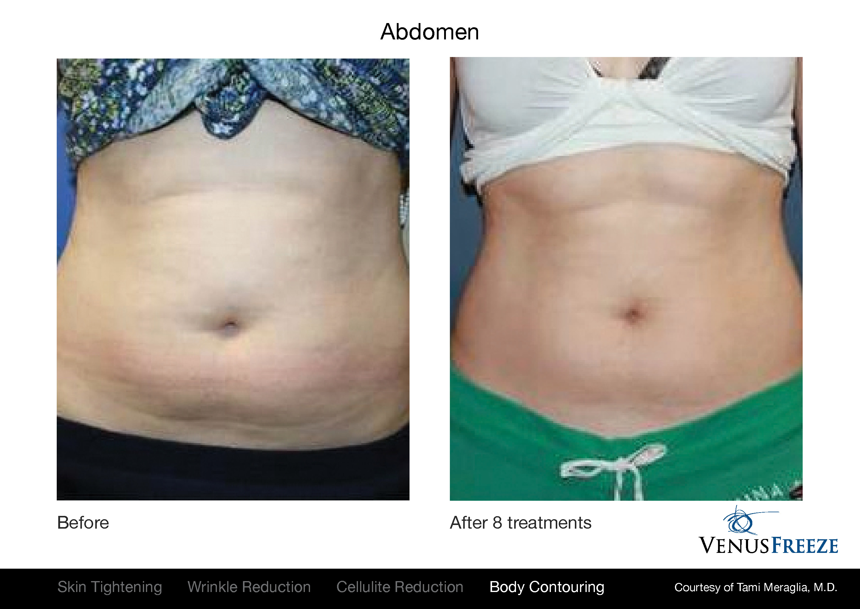 Body Contouring Austin | Venus Freeze Before & After | Stomach