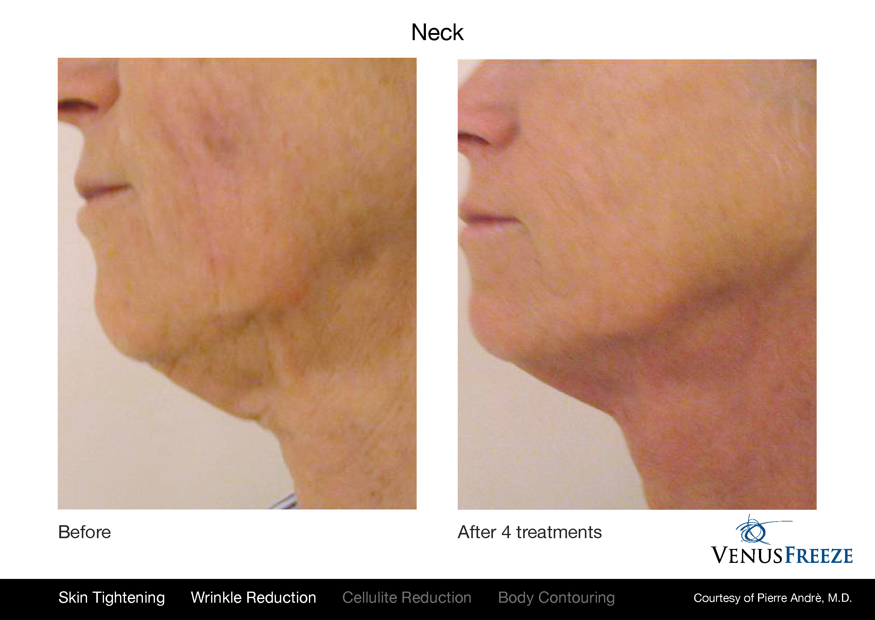 Body Contouring Austin | Venus Freeze Neck Before & After | Wrinkle Reduction & Skin Tightening