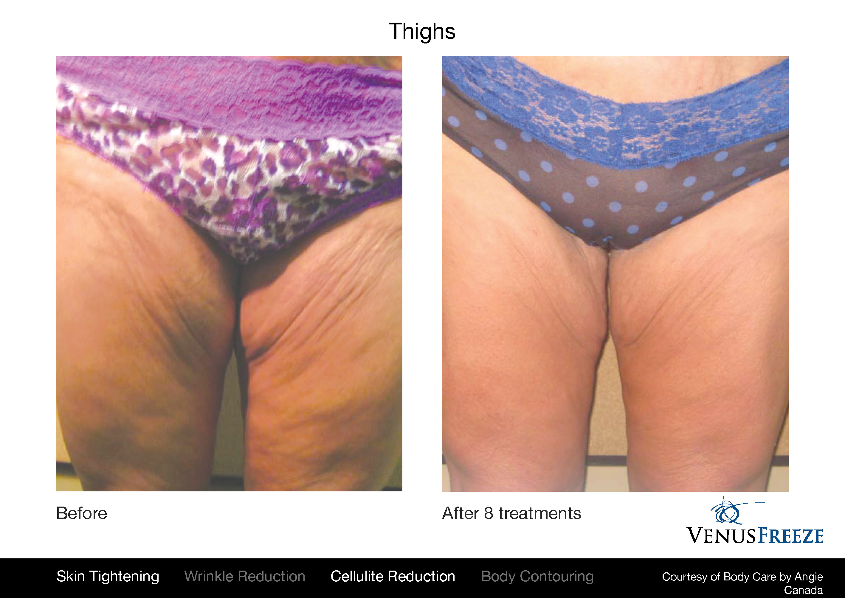 Body Contouring Austin | Venus Freeze Before & After | Skin Tightening, Cellulite Reduction & Body Contouring Thighs