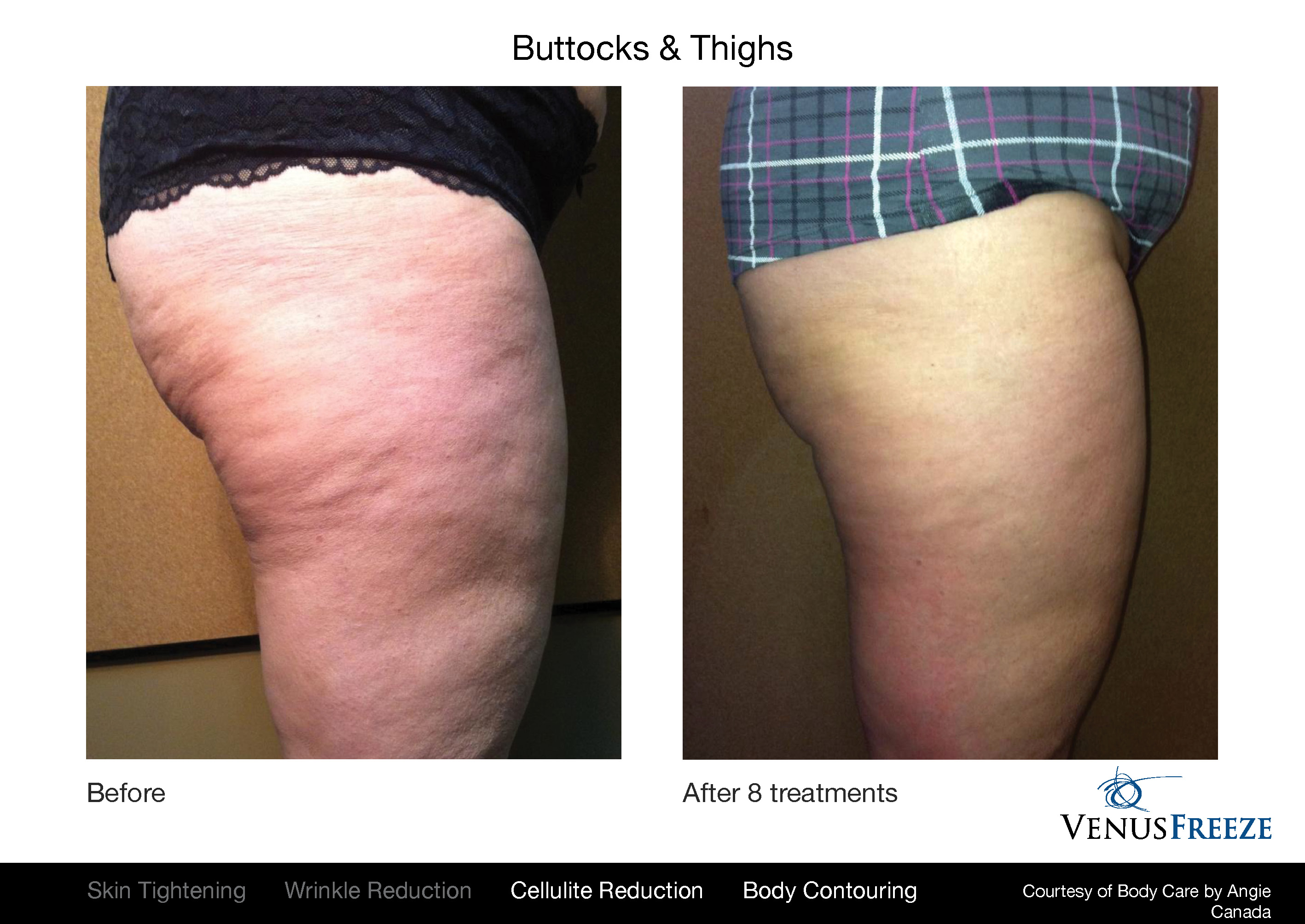 Body Contouring Austin |Venus Freeze Before & After | Cellulite Reduction Thighs