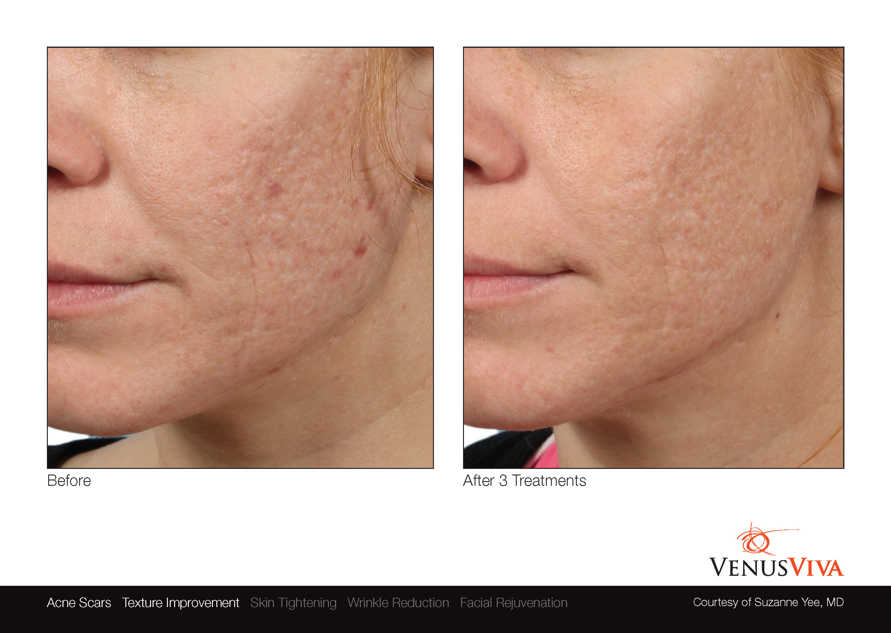 Skin Resurfacing Austin | Venus Viva | Acne Scars | Texture Improvement | Before & After