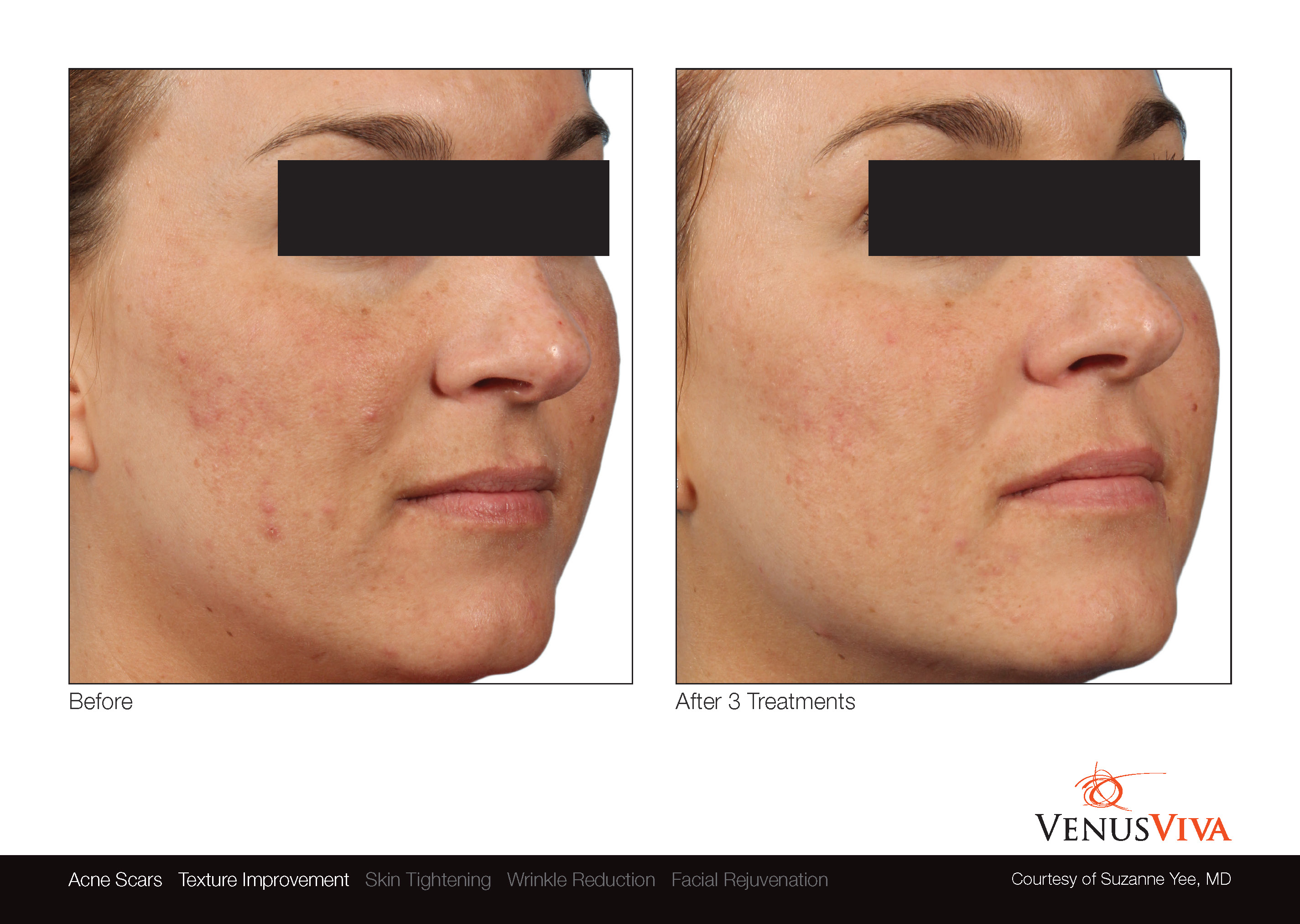 Skin Resurfacing Austin | Venus Viva | Acne Scars & Texture Before & After