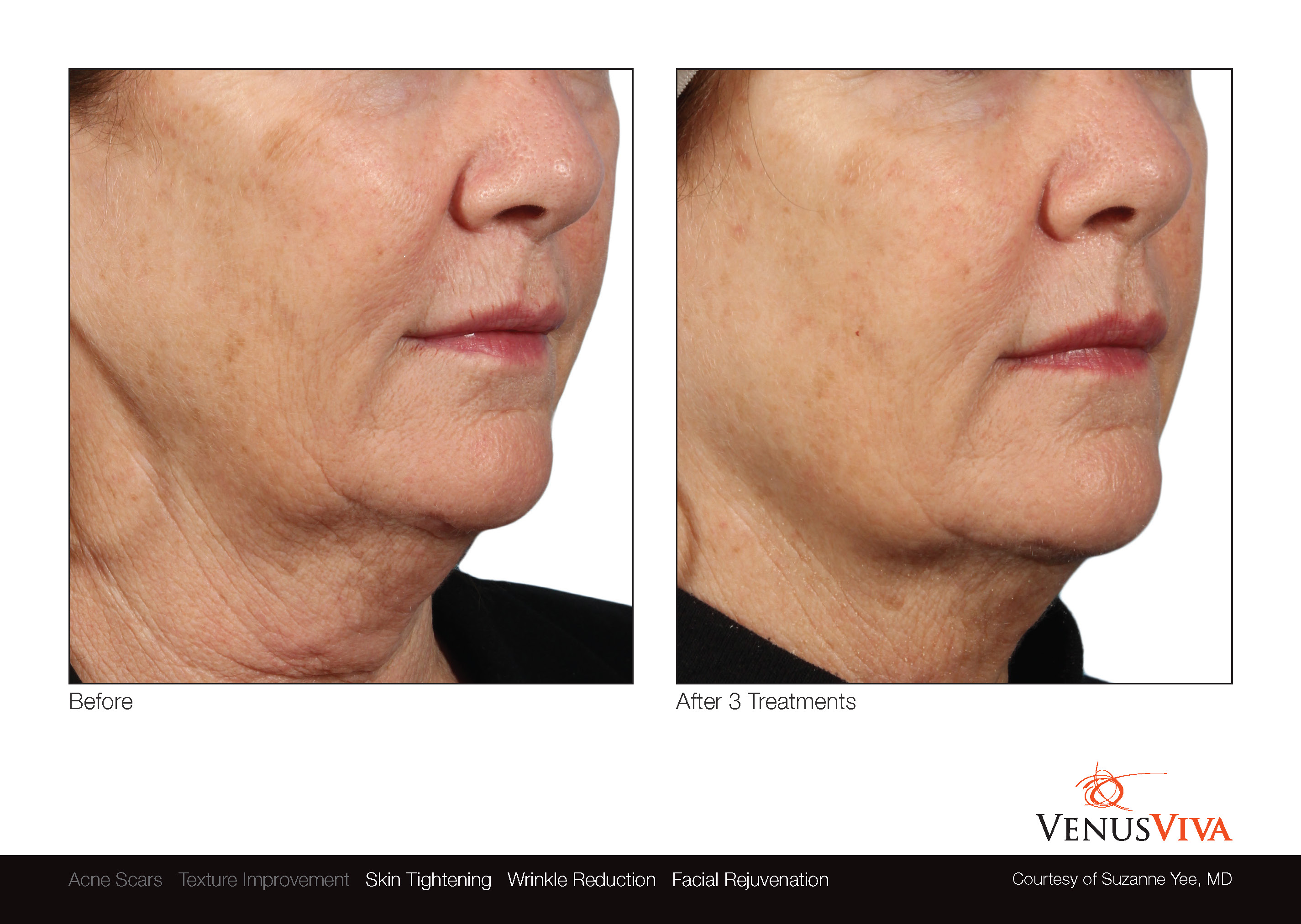 Skin Resurfacing Austin | Venus Viva | Wrinkle Reduction | Skin Tightening | Before & After