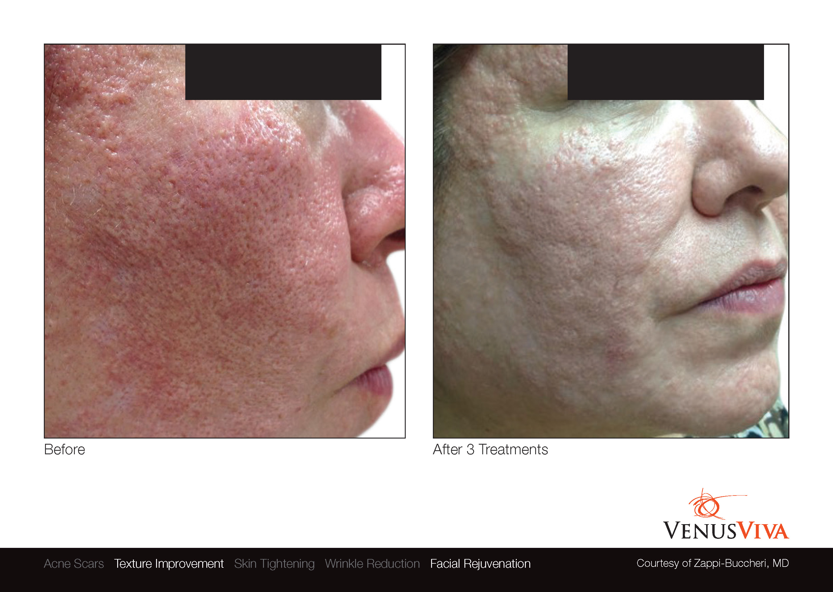 Skin Resurfacing Austin | Venus Viva | Texture Improvement | Before & After