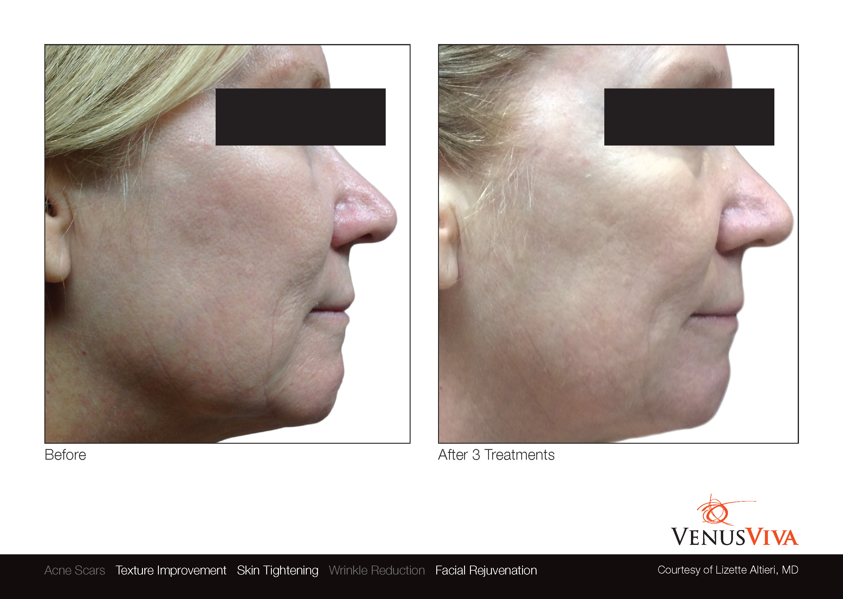Skin Resurfacing Austin | Venus Viva | Texture Improvement | Skin Tightening | Before & After