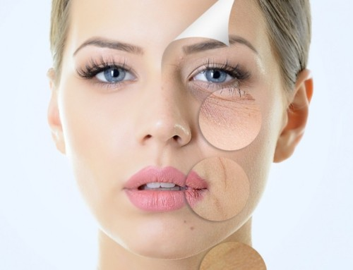 Sun Damage:  4 Treatments That Really Work