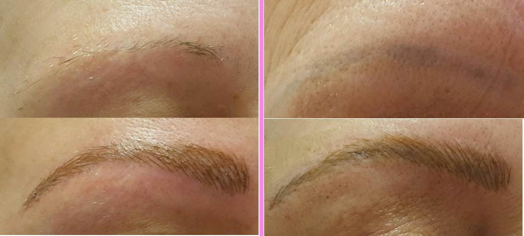 Microblading Eyebrow Permanent Makeup Simple Radiance Medspa